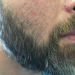 FUE Beard Transplant - Patient 11 - Before Procedure