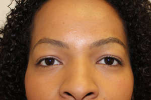 FUE Eyebrow Transplant - Patient 10 - After Procedure