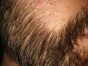 FUE Beard Transplant - Patient 11 - 3 Months After Procedure