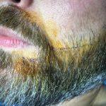 FUE Beard Transplant - Patient 11 - Immediately Before Procedure
