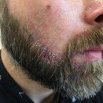 FUE Beard Transplant - Patient 11 - Immediately After Procedure