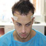 FUE Hair Transplant - Patient 3 - Before Procedure