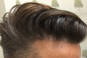 FUE Hair Transplant - Patient 3 - Final Result After Procedure