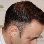 FUE Hair Transplant - Patient 4 - Final Result After Procedure
