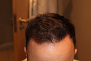 FUE Hair Transplant - Patient 4 - Final Result After Procedure