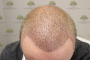 FUE Hair Transplant - Patient 5 - One Month After Procedure