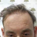 FUE Hair Transplant - Patient 6 - Before Procedure