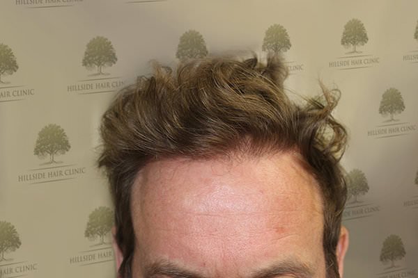 FUE Hair Transplant - Patient 6 - Final Result of Procedure