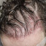 FUE Hair Transplant - Patient 6 - Immediately After Procedure