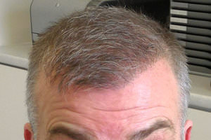 FUE Hair Transplant - Patient 8 - End Result of Procedure