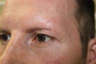 FUE Eyebrow Transplant - Patient 9 - Before Procedure