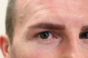 FUE Eyebrow Transplant - Patient 9 - Immediately After Procedure
