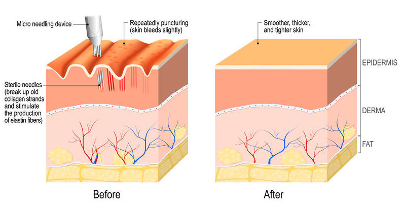 Collagen induction therapy. microneedling the skin