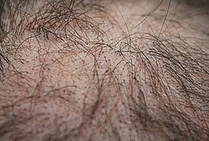 Female Hair Loss: Treatments & Solutions At Hillside