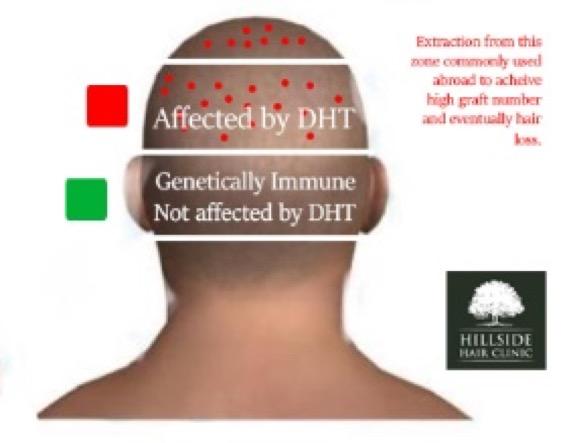 generally-immune-hillside-hair-clinic
