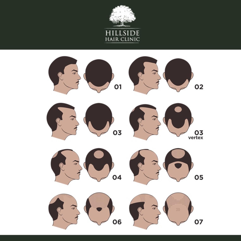 HHC male hairloss pattern