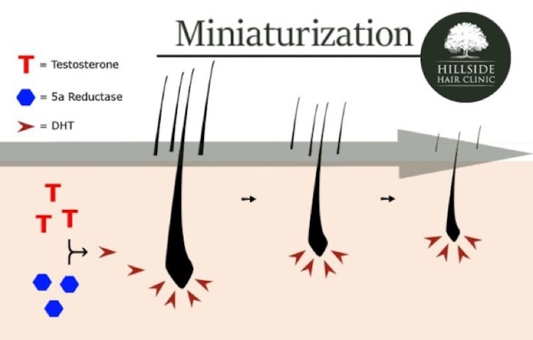 hillside-hair-clinic-miniaturization-male-hair-loss-hillside-hair-clinic