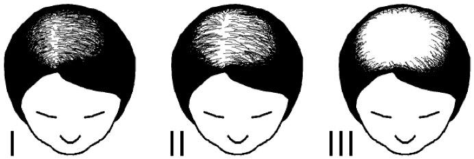 female hair loss pattern