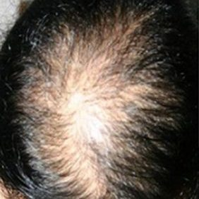 hair-loss-classification-type-1-hillside-hair-clinic